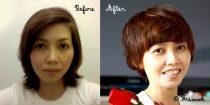 before-after ก่อนและหลังตัดผม
